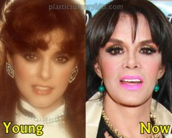 Lucia Mendez Plastic Surgery Before and After