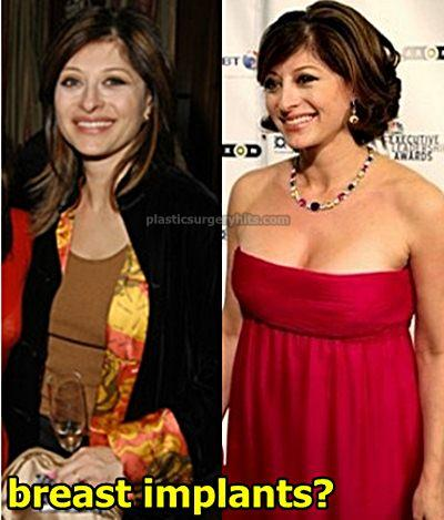 Maria Bartiromo Breast Implants