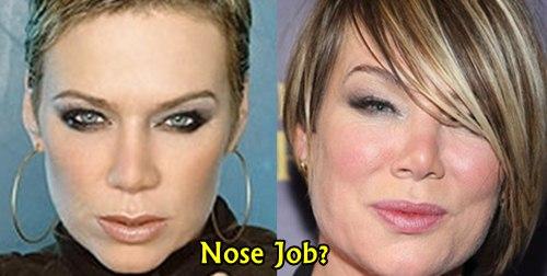Mia Michaels Nose Job