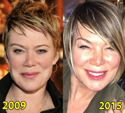 Mia Michaels Plastic Surgery