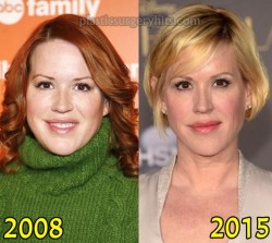 Molly Ringwald Plastic Surgery Fact or Rumor