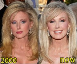 Morgan Fairchild Plastic Surgery Before and After