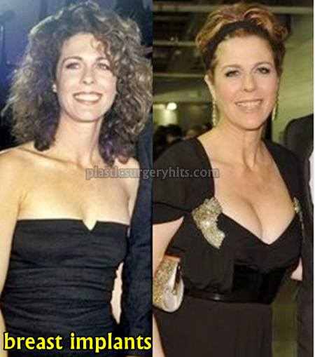 Rita Wilson Breast Implants