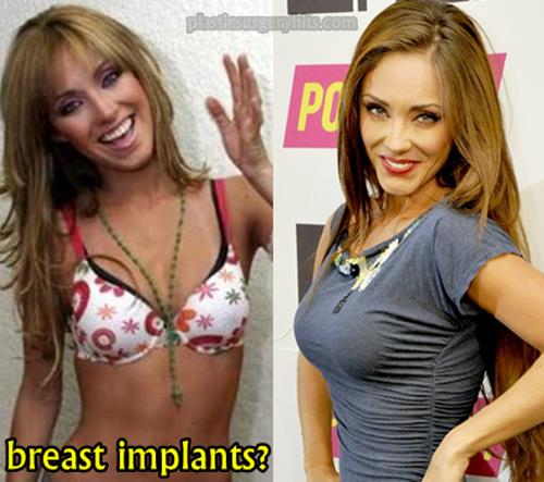 Anahi Breast Implants