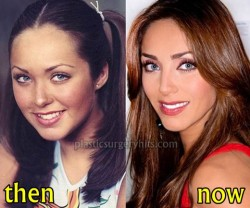 Anahi Plastic Surgery Before an After