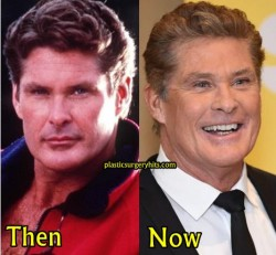 David Hasselholf Plastic Surgery