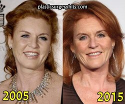 Duchess of York, Sarah Ferguson Plastic Surgery