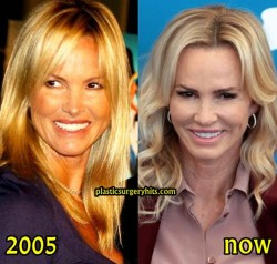 Janet Gretzky Facelift Possibilty