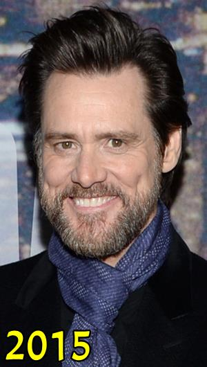 Jim Carrey Plastic Surgery
