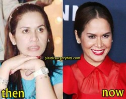 Jinkee Pacquiao Plastic Surgery Before and After