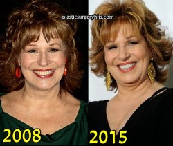 Joy Behar Plastic Surgery Before and After
