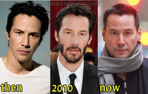 Keanu Reeves Botox Injection