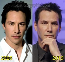 Keanu Reeves Plastic Surgery