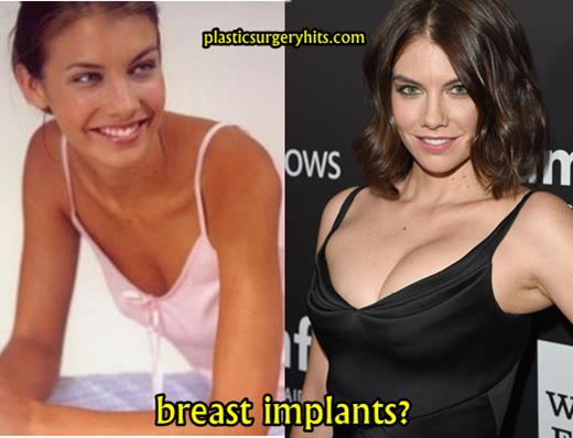 Lauren Cohan Plastic Surgery Breast Implants