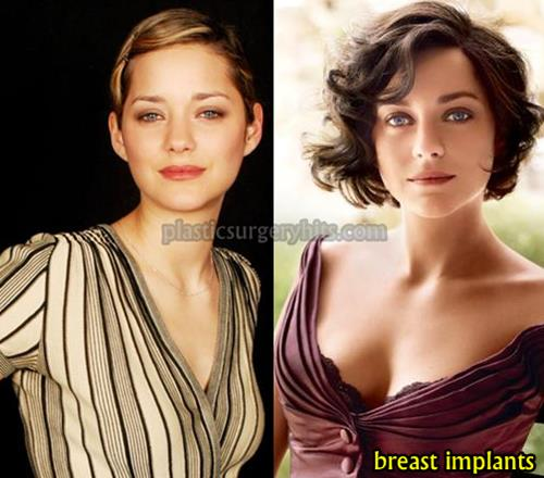 Marion Cotillard Breast Implants