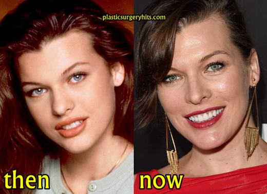 Milla Jovovich Teeth Surgery