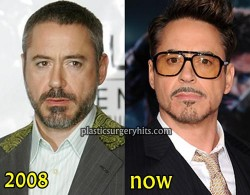 Robert Downey Jr Plastic Surgery Fact or Rumor