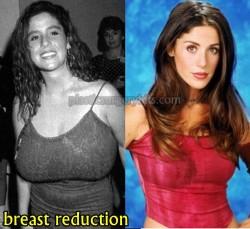 Soleil Moon Frye Breast Reduction