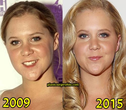 Amy Schumer Plastic surgery