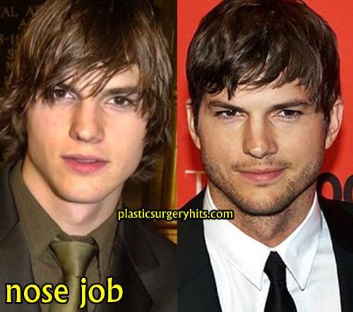 Ashton Kutcher Nose Job