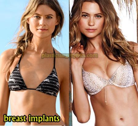 Behati Prinsloo Breast Implants
