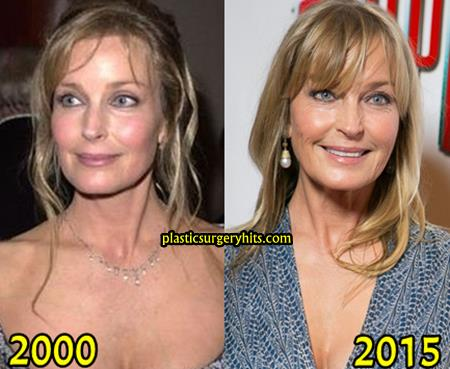 Bo Derek Plastic Surgery Fact or Rumor