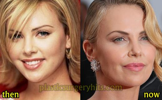 Charlize Theron Plastic Surgery Before and After