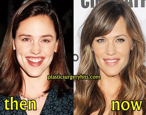 Jennifer Garner Plastic Surgery Before and After