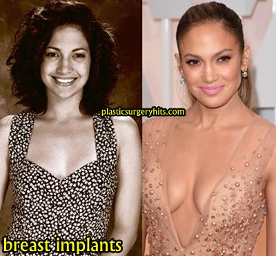 Jennifer Lopez Breast Implants