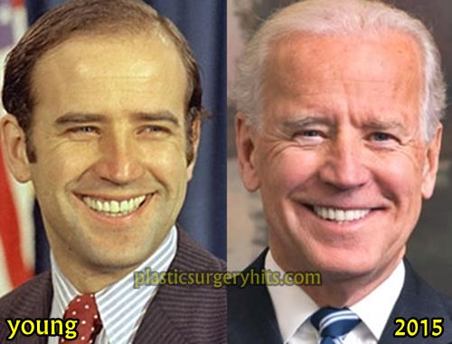 Joe Biden Plastic Surgery Possibility