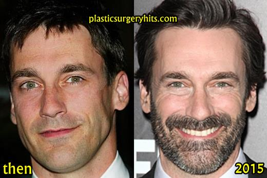 Jon Hamm Plastic Surgery Fact or Rumor