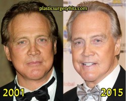 Lee Majors Plastic Surgery Before and After