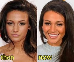 Michelle Keegan Plastic Surgery Fact or Rumor