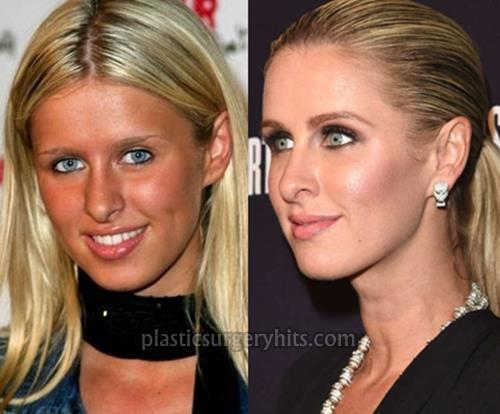 Nicky Hilton Nose Job Plastic Surgery