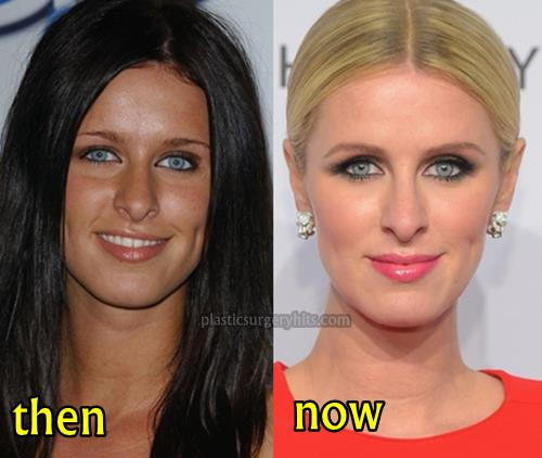Nicky Hilton Plastic Surgery