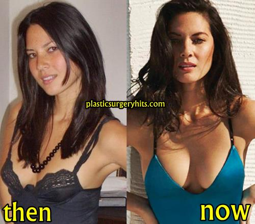 Olivia Munn Plastic Surgery Fact or Rumor