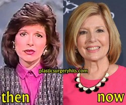 Sandie Rinaldo Plastic Surgery Before and After