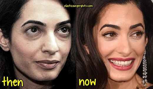 Amal Clooney Plastic Surgery Before and After