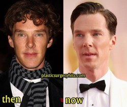 Benedict Cumberbatch Plastic Surgery Fact or Rumor