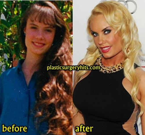 Coco Austin Breast Implants