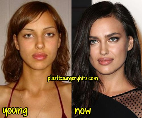 Irina Shayk Plastic Surgery Fact or Rumor