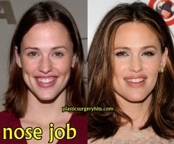 Jennifer Garner Nose Job