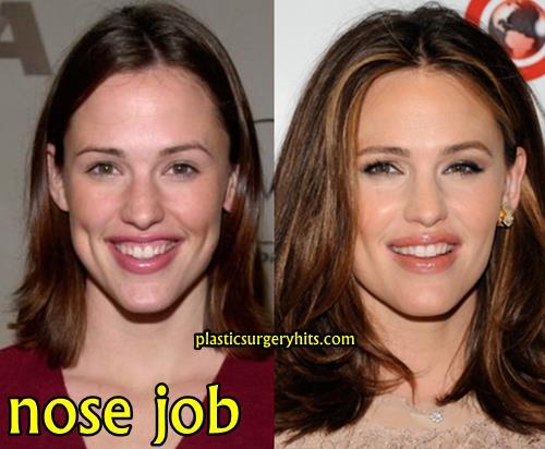 Jennifer Garner Nose Job