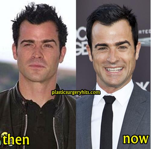 Justin Theroux PLastic Surgery Fact or Rumor