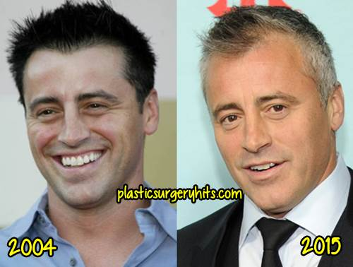 Matt LeBlanc Plastic Surgery Spculation