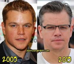 Matt Damon Plastic Surgery fact or Rumor
