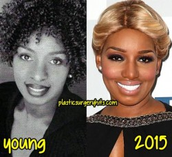NeNe Leakes Plastic Surgery