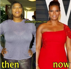 Queen Latifah Plastic Surgery Before and After