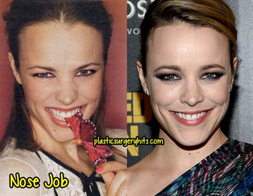 Rachel McAdams Nose Job