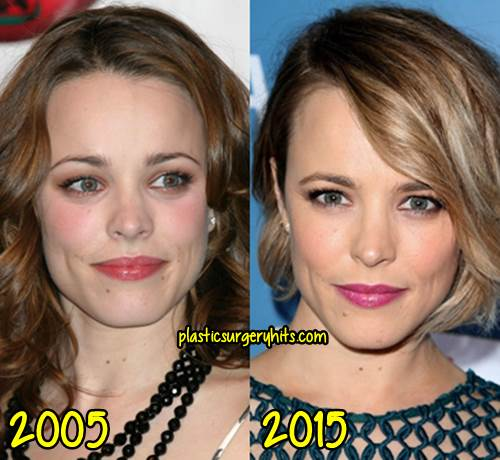 Rachel McAdams Plastic Surgery Before and After